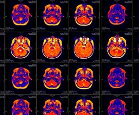 ¿Por qué lo llaman neuromarketing cuando quieren decir neurofarsa?