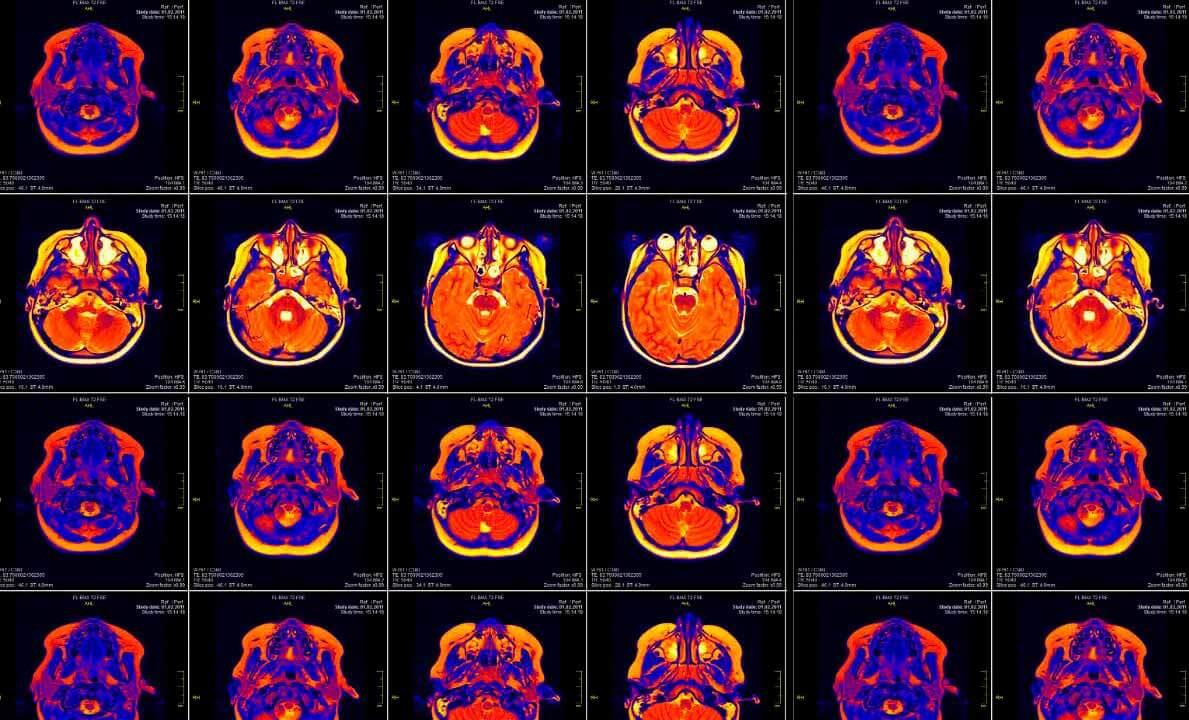 imagenes de resonancia magnetica funcional aplicada al neuromarketing